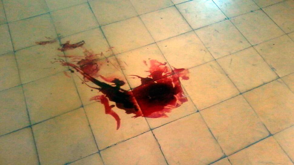 intentó suicidarse de disparo en la cabeza.