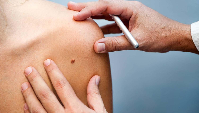 Mueren más de 10 argentinos por semana a causa del melanoma