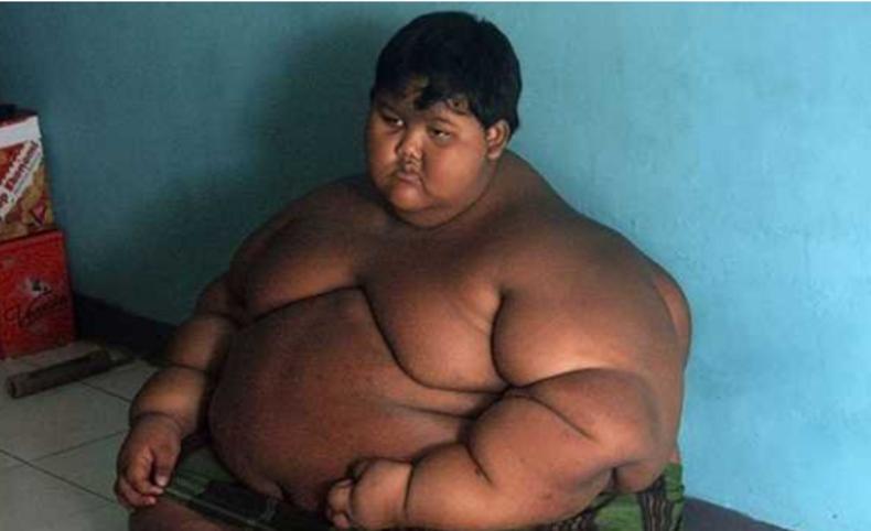 La increíble transformación del niño 'más obeso del mundo'