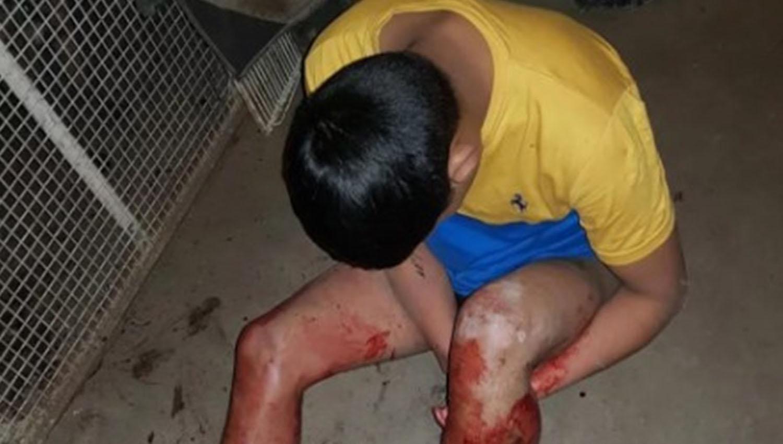 Escalofriante: entró a robar y fue sorprendido por un Pitbull - Policiales