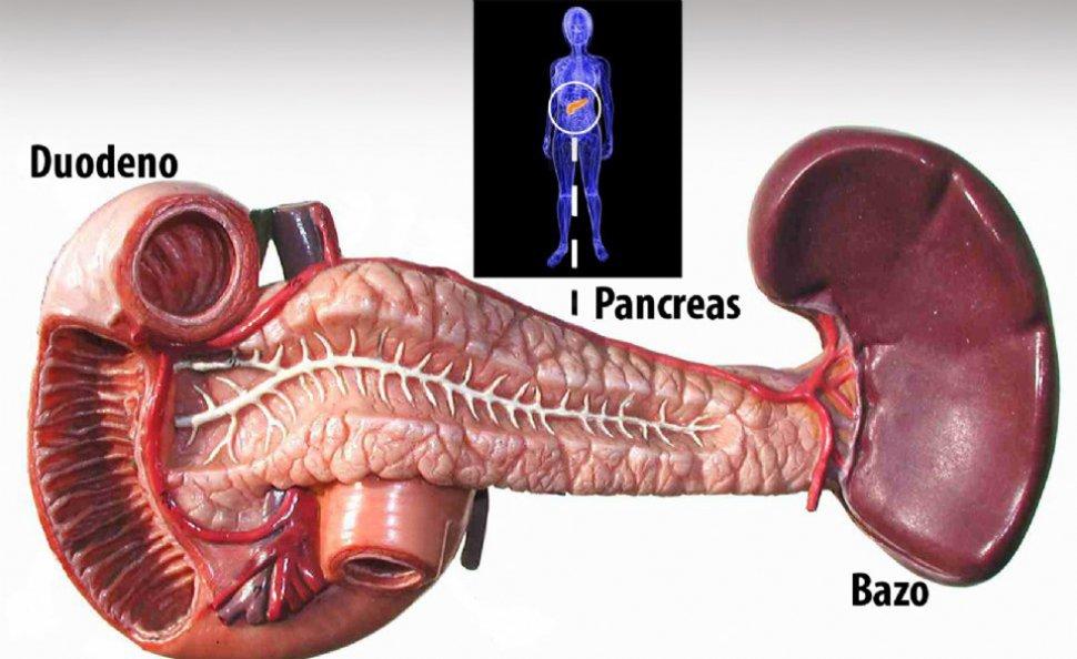 El problema es que el cáncer de páncreas se deja ver cuando está muy ...