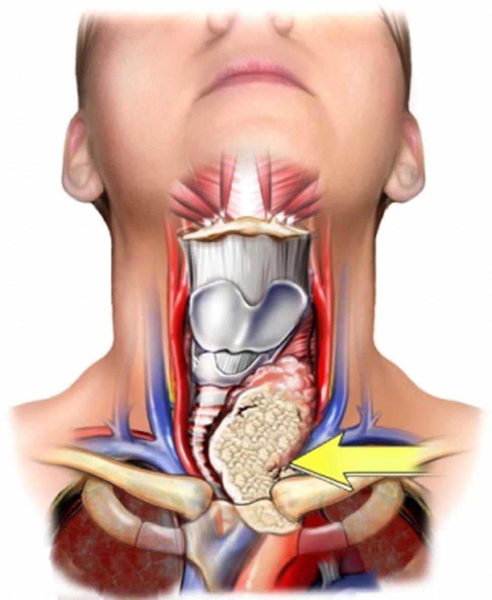Qué son y qué función cumplen las tiroides? - LA GACETA Tucumán
