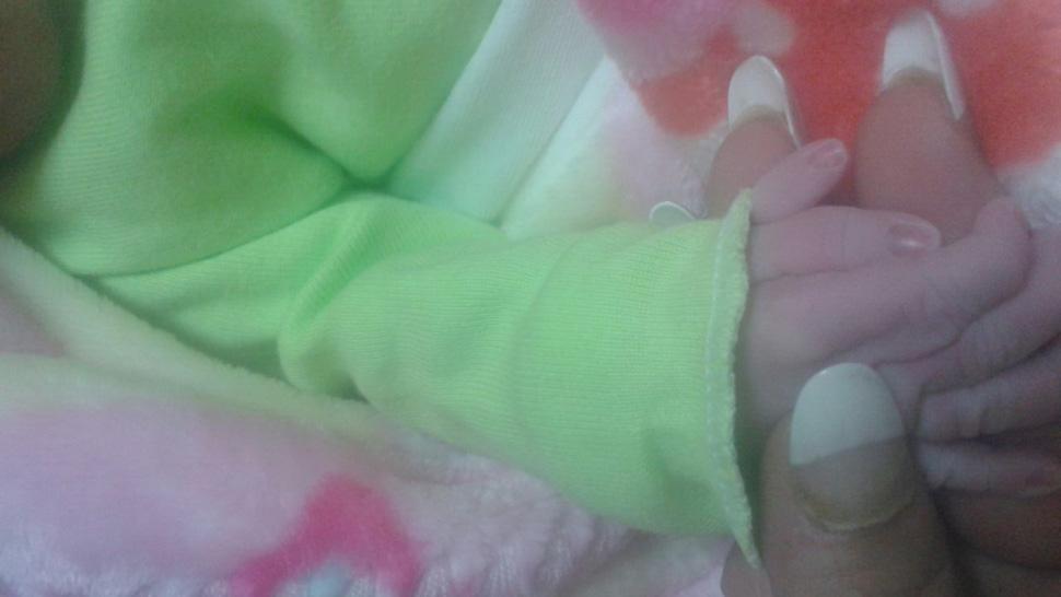 Nació en Tucumán una nena con seis dedos y es el segundo caso dentro ...