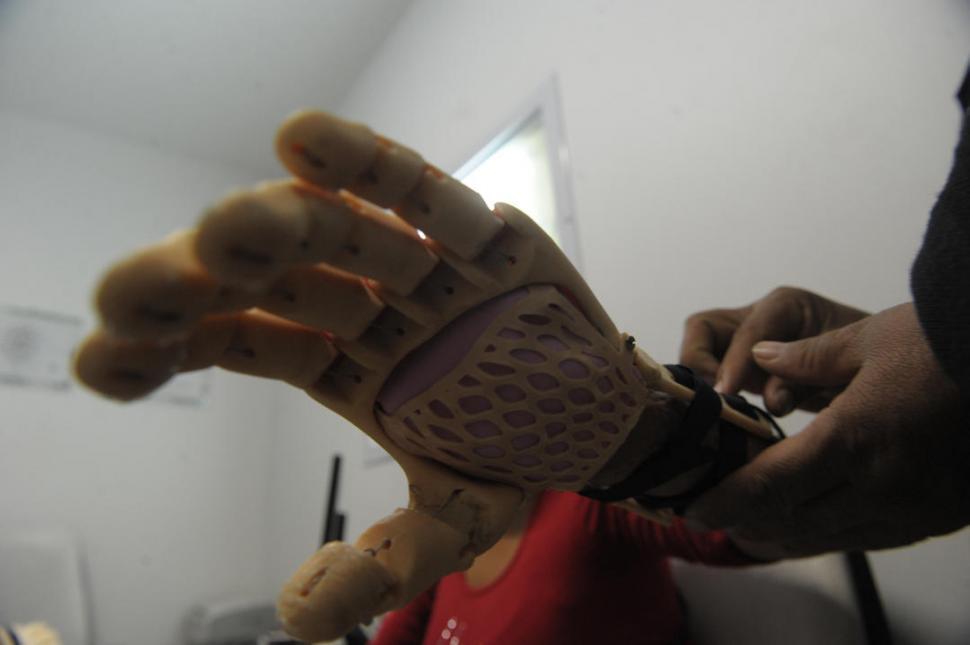 AJUSTE AMOROSO. Las manos de la madre sujetan con ternura la prótesis en el brazo izquierdo de Camila.  la gaceta / fotos de FRANCO VERA