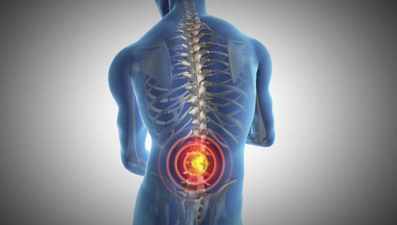 Cuidado: detrás de una lumbalgia crónica puede esconderse una enfermedad discapacitante
