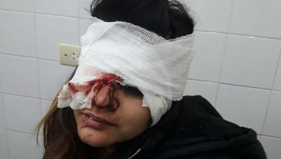 Internan a una joven atacada en un boliche