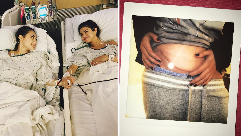 INSEPARABLES. Francia y Selena posaron para las cámaras antes de ingresar al quirófano. FOTO TOMADA DE INSTAGRAM.COM/SELENAGOMEZ