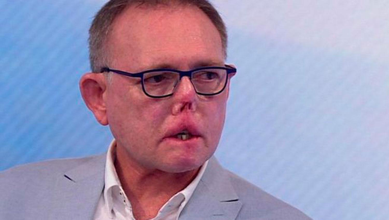 JACO NEL. El médico perdió parte de su nariz y boca, lo que le impide comer y hablar bien. FOTO TOMADA DE LA BBC