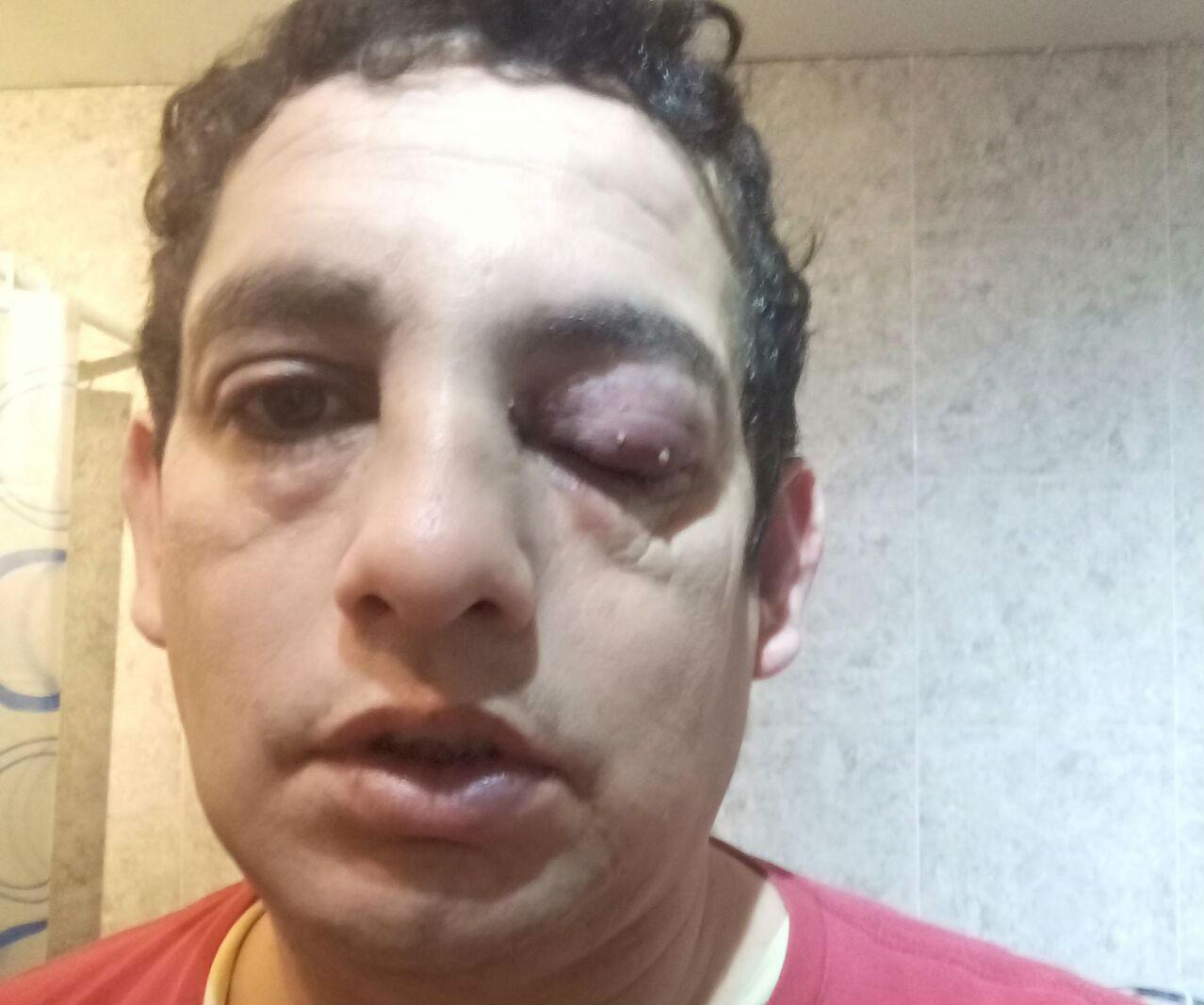 El hombre que se agarró a trompadas con el municipal ya lo había denunciado en 2015