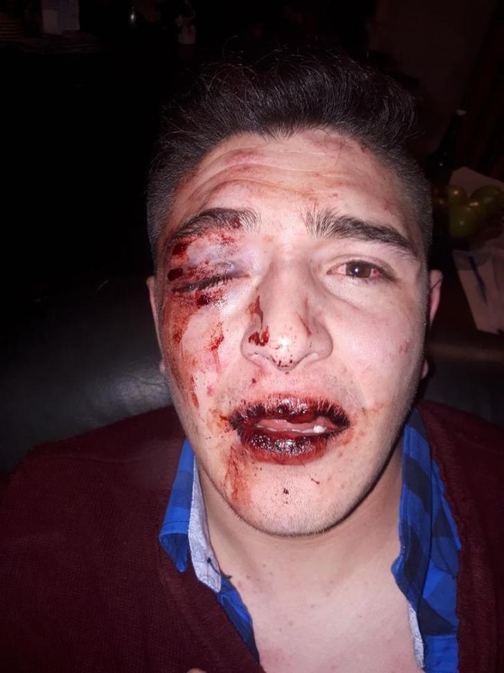 Denuncia que patovicas y policías le dieron una golpiza