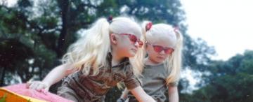 Ser albino en Tucumán: entre la sorpresa y la discriminación