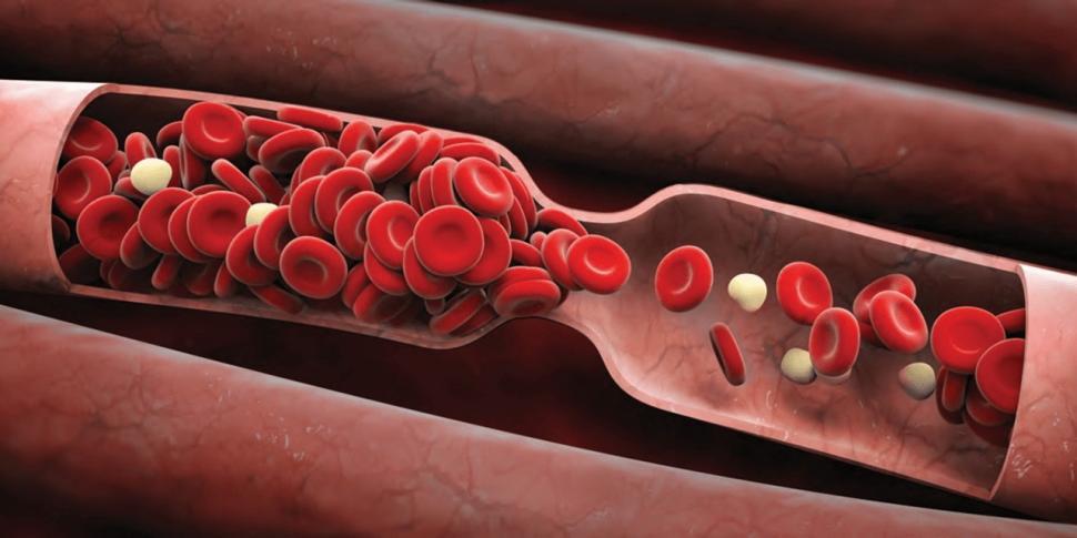 Día Mundial de la Trombosis, la patología que causa el 25% de las muertes